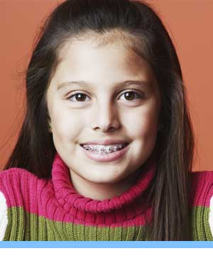 Early Treatment girl braces Elite Orthodontics San Diego CA
