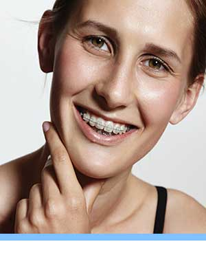 Damon Braces interior photo young woman braces Elite Orthodontics San Diego CA