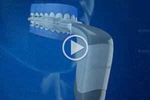 Acceledent video Elite Orthodontics San Diego CA